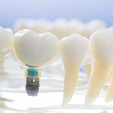 Model of dental implants in Dallas