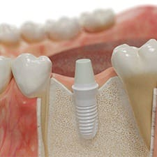 Diagram of how dental implants work in Dallas