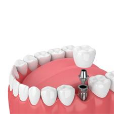 diagram of dental implants in Dallas