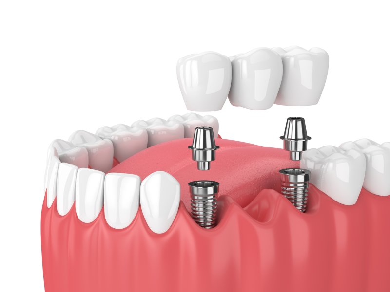 a digital image of an implant bridge on the lower arch